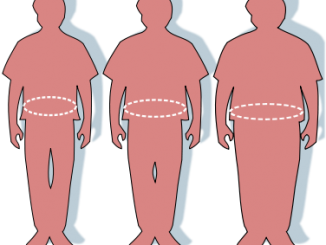 obesity-wikipedia
