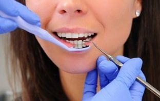 Advantages of Dental Implants Over Dental Bridges
