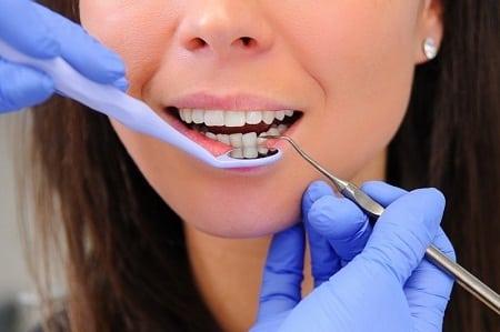 Advantages of Dental Implants Over Dental Bridges