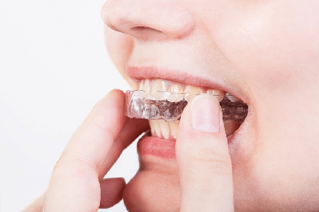 Essential Things to Know About Mouth Guards